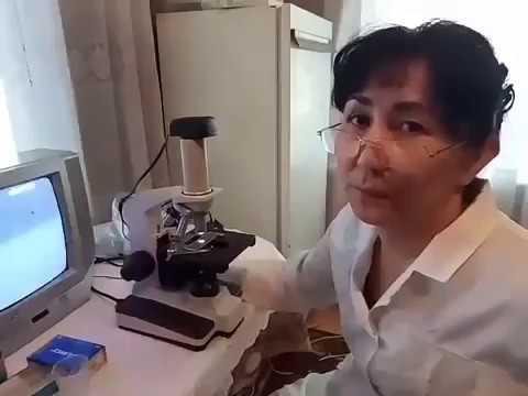 Bepic Для тех кто не верит словам Исследование Elev8 Врачом гематологом