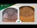 Khách hàng hói trán bẩm sinh thay đổi hoàn hảo sau khi cấy tóc tại Đông Á