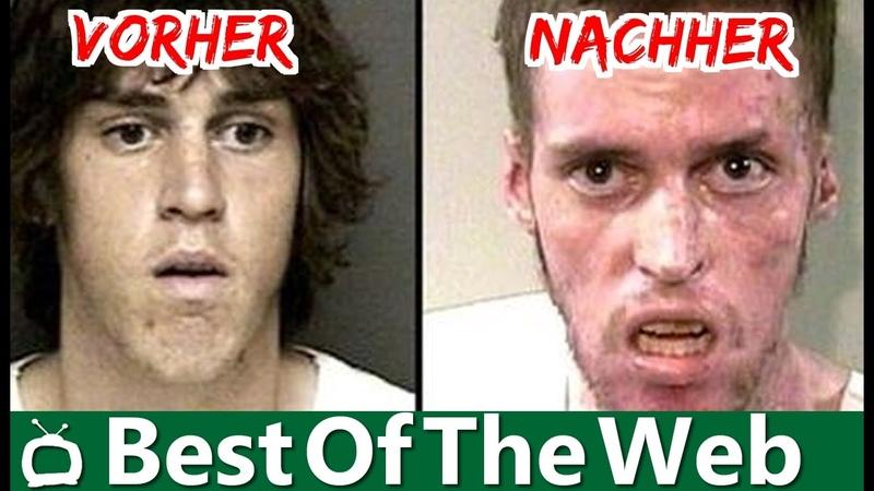 5 Drogenmissbrauch Vorher/Nachher Bilder