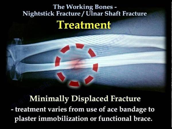 Nightstick Fracture , Ulnar Shaft fracture. Just FYI.