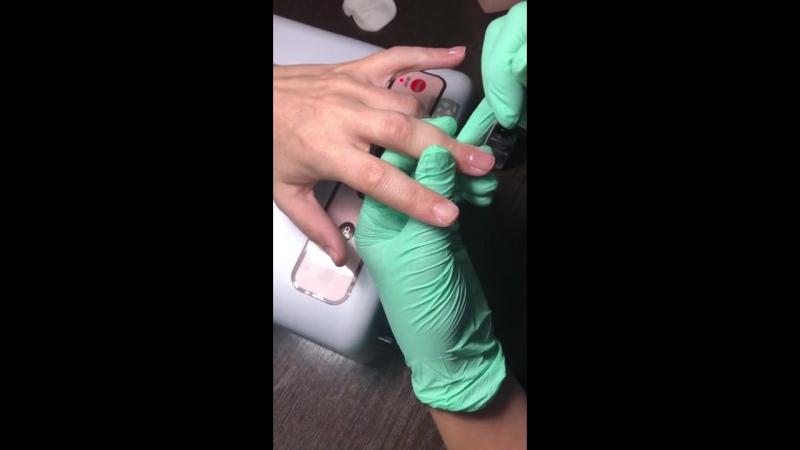 Выравнивание ногтевой пластины в Центре красоты и здоровья Ботаника