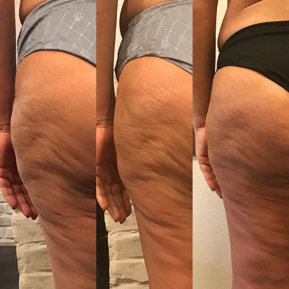 Эффективность Массажа При Похудении. Можно ли похудеть при помощи массажа