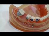 Dr Mazor Yoav molar masialization power arm Mini screw. Ортодонтия.Израильский ролик.