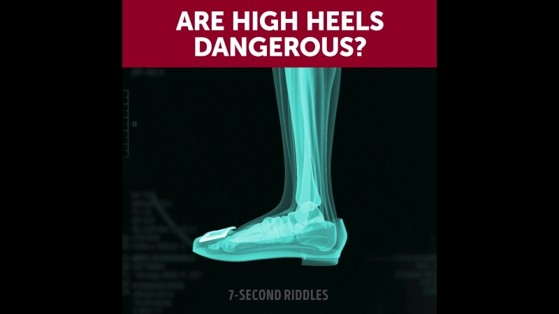 Are High Heels Dangerous