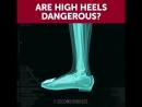 Are High Heels Dangerous