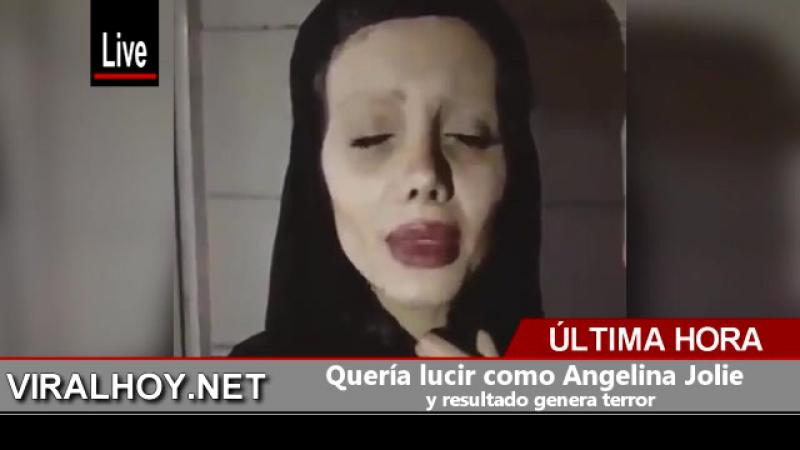 Quería lucir como Angelina Jolie y resultado genera terror