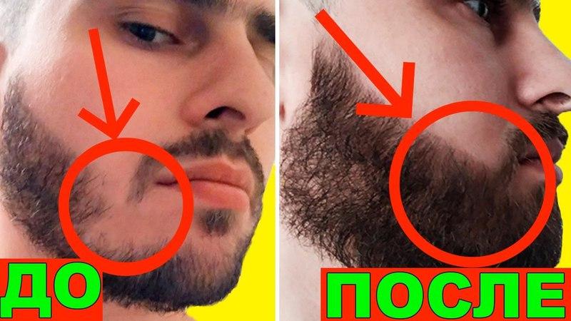 Как увеличить густоту бороды Миноксидил 10 месяцев