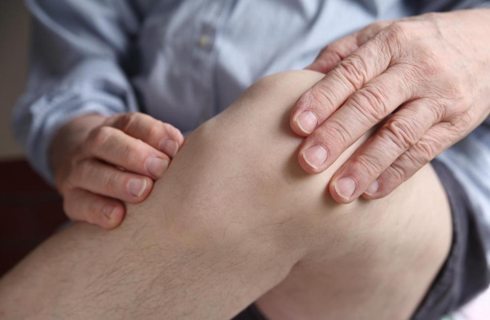 Оральная гиалуроновая кислота используется в качестве болеутоляющего средства для дискомфорта в колене.