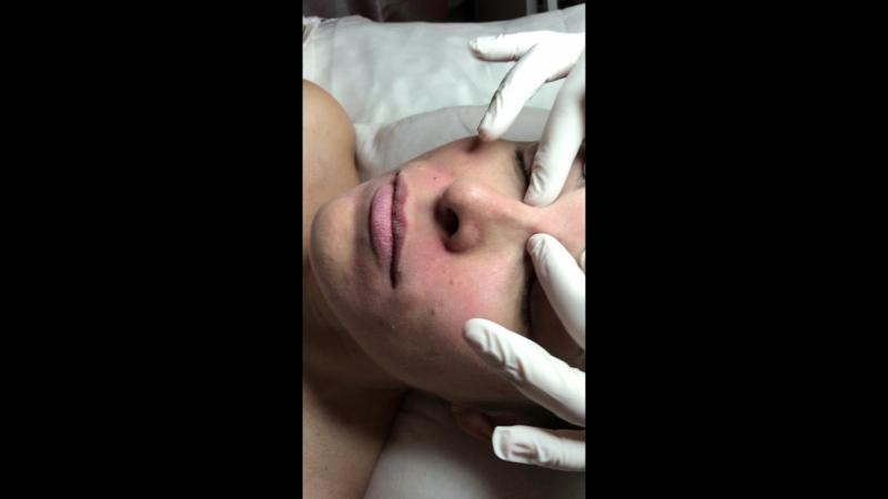 Централизация круговой мышцы рта и централизация серединной линии лба
