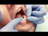 Как правильно использовать зубную нить?