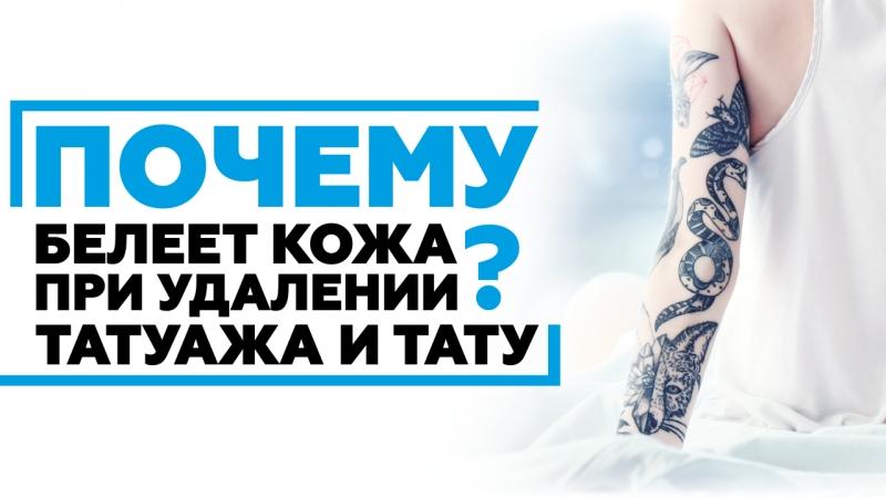Почему белеет кожа при удалении татуажа и тату Nd:YAG лазерами?