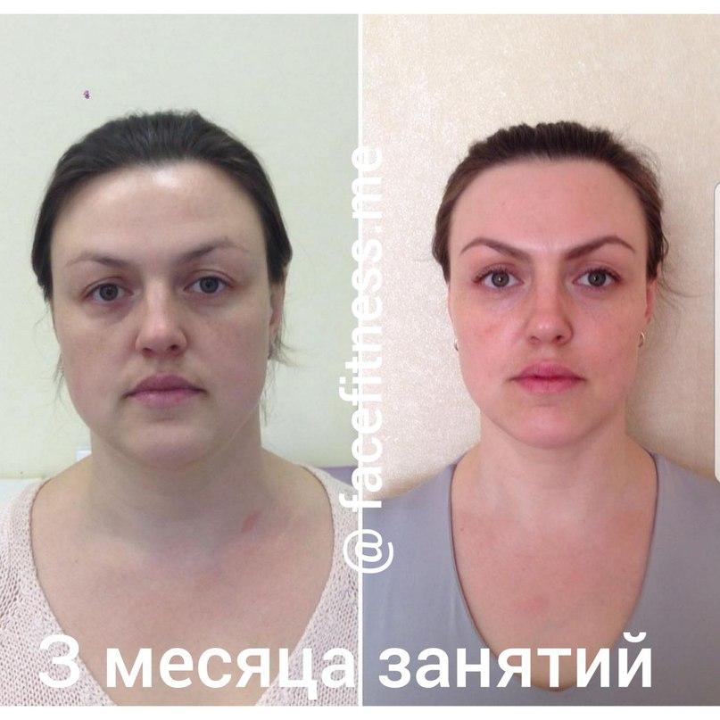 Результат Похудения На Лицо. 7 простых способов похудеть в лице
