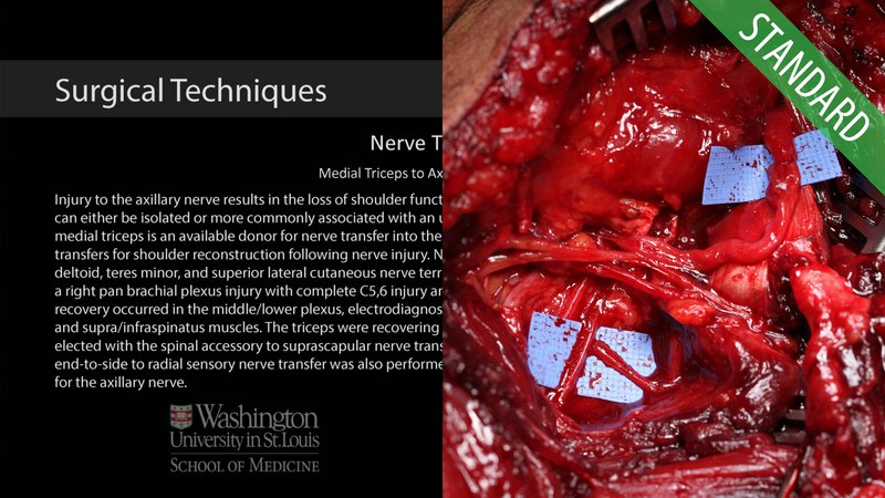 Medial Triceps to Axillary Nerve Transfer - Standard