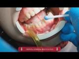 Бесплатное удаление зубного камня и чистка зубов