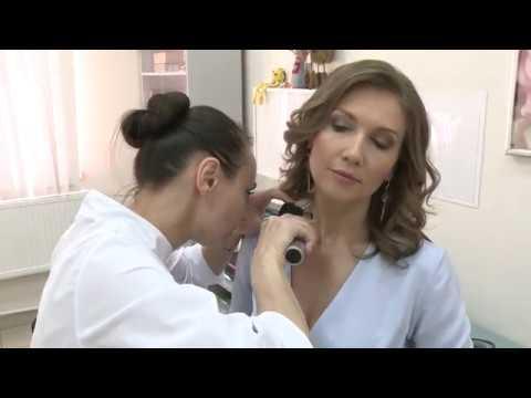 Маммологический центр ВЕСНА меланома и удаление родинок