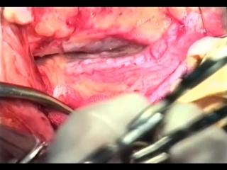 Интраперитонеальный доступ перевязки подвздошной артерии © Ligation of the internal iliac artery.mp4