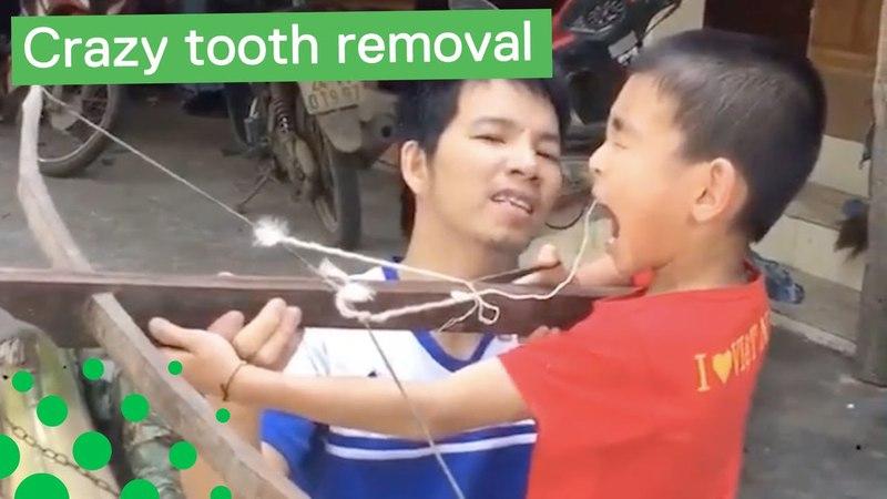 необычное удаление зуба