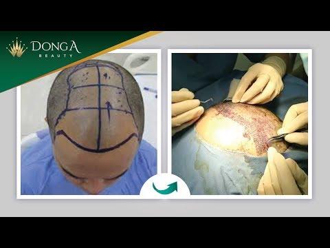Cận cảnh cấy tóc tự thân - Trị hói đầu - Hết trọc | TMV Đông Á