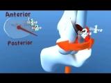 Lauge Hansen SER Supination External Rotation (Eversion) Ankle Fracture
