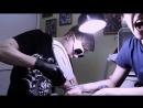 Удаление татуировки ND лазером