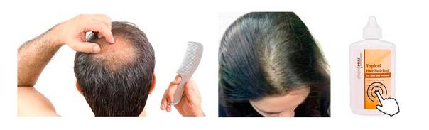 ru.iherb.com/pr/Natrol-Shen-Min-Topical-Hair-Nutrient-For-Men-and-Women-3-1-fl-oz-93-ml/39?rcode=LLV189
