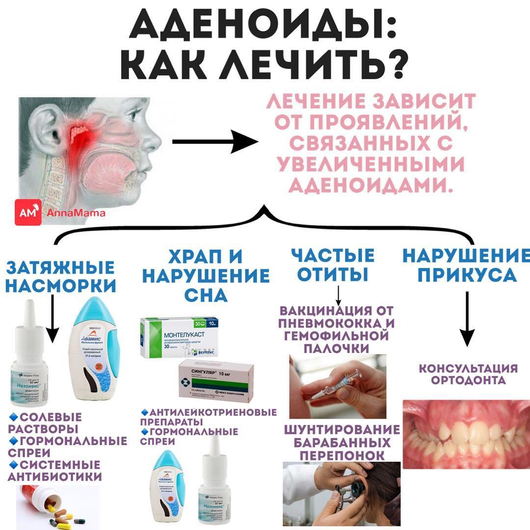 Схема для лечения аденоидов
