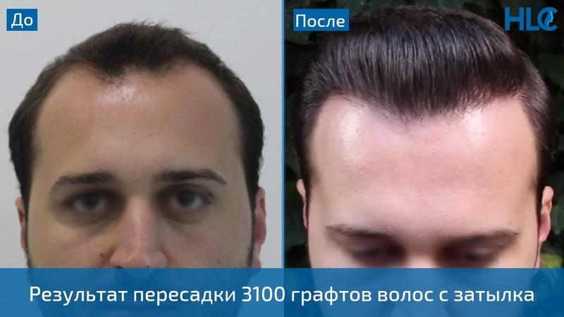 Результат плотной пересадки 3100 графтов - Клиника HLC в Турции