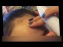 Mole Removal портативный прибор для лазерного удаления родинок, папиллом и татуировок