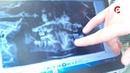 В Вологде прошел суд по громкому делу зубного врача