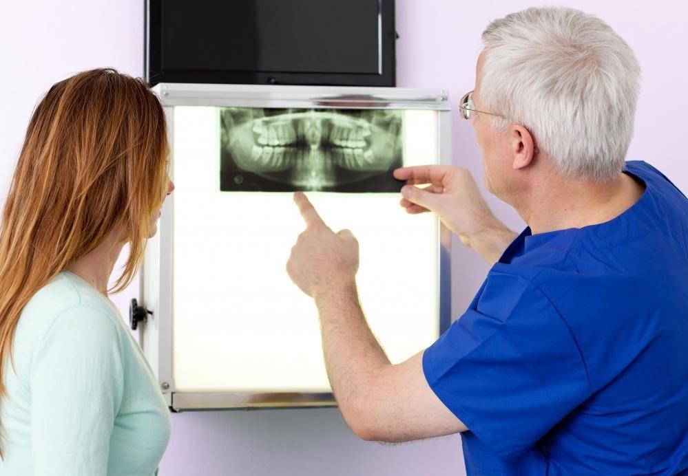 Зубные рентгенограммы помогают стоматологам диагностировать проблемы с зубами.