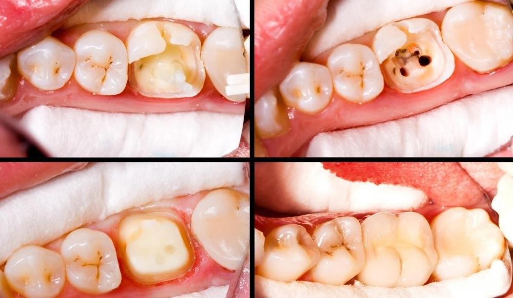 Заполнение полостей часто является частью первичной стоматологической помощи.