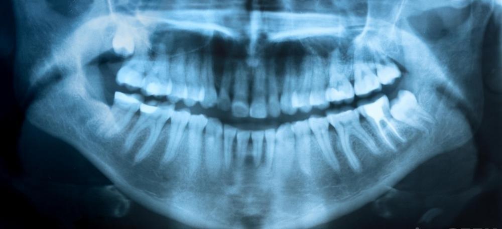 Рентгеновские лучи часто являются частью первичной стоматологической помощи.