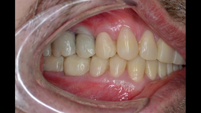 Полная реконструкция зубочелюстной системы металлокерамическими коронками и коронками на имплантатах.
