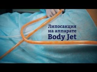 Липомоделирование Body Jet