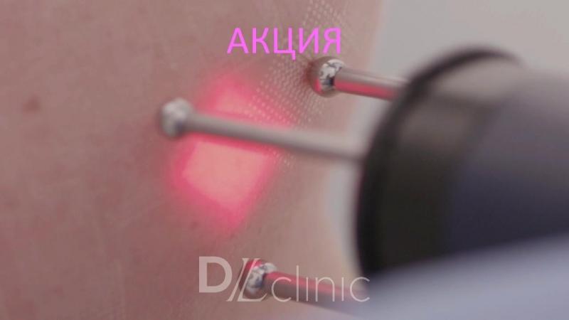Лазерное омоложение кожи в DLclinic