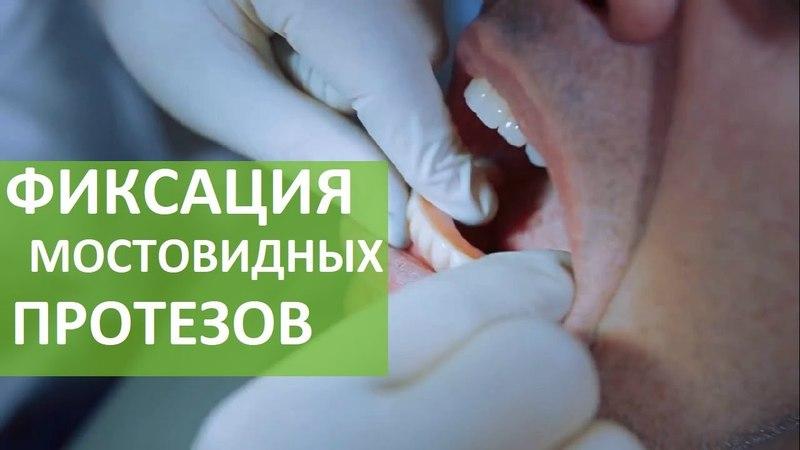 Мостовидный протез. ⌒ Почему не стоит объединять свои зубы и импланты в один мостовидный протез? 12