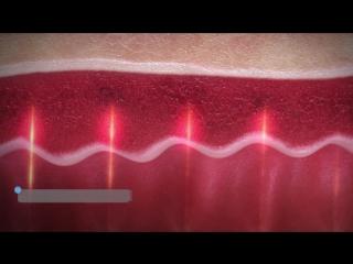 CO2-лазер для гинекологии. Манипулятор FemTouch к CO2-лазеру AcuPulse от Lumenis