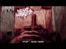 Infant Annihilator -Anal Prolapse Suffocation Down-Tempo Version