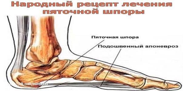 Народный рецепт лечения пяточной шпоры