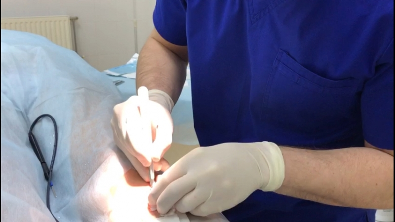 Удаление Скальпелем опухоли кожи