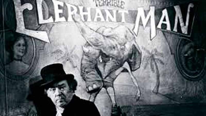 The Elephant Man 1980 avi MP3 WEBDLRIP ITA