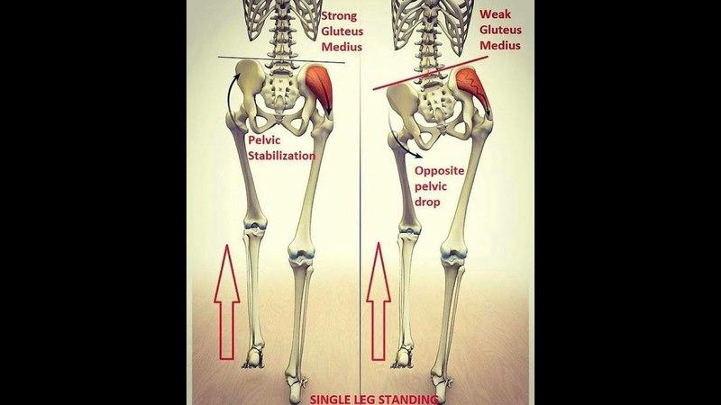 слабость средней ягодичной мышцы