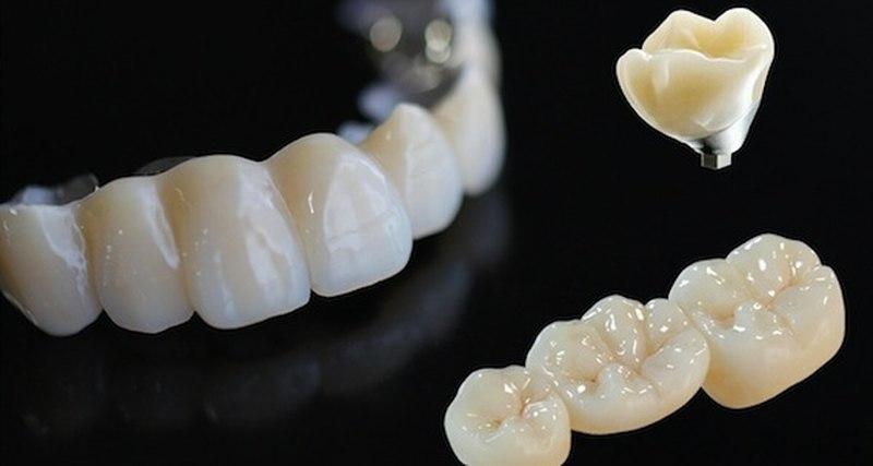 Студенты из Петербурга нашли способ сделать зубные коронки втрое дешевле