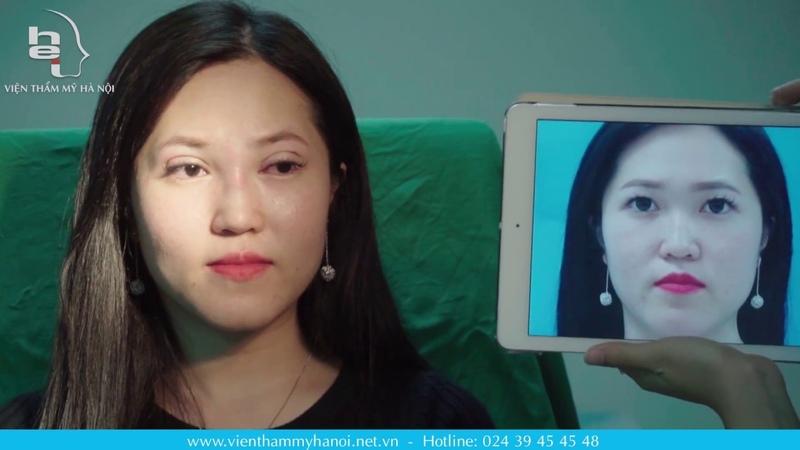 Nâng Mũi Alloderm, Nhấn Mí Hàn Quốc, Lấy Mỡ Mí Trên - Tiến sĩ, Bác sĩ Mai Mạnh Tuấn