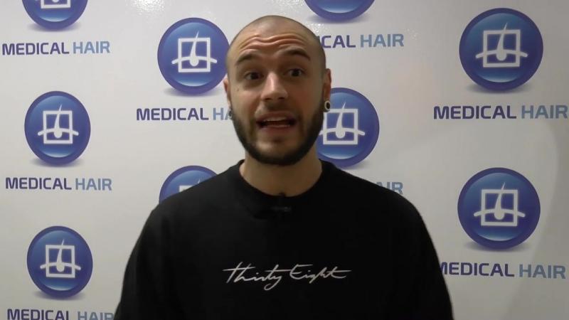 Adrián Rodríguez_ su trasplante capilar después de un mes