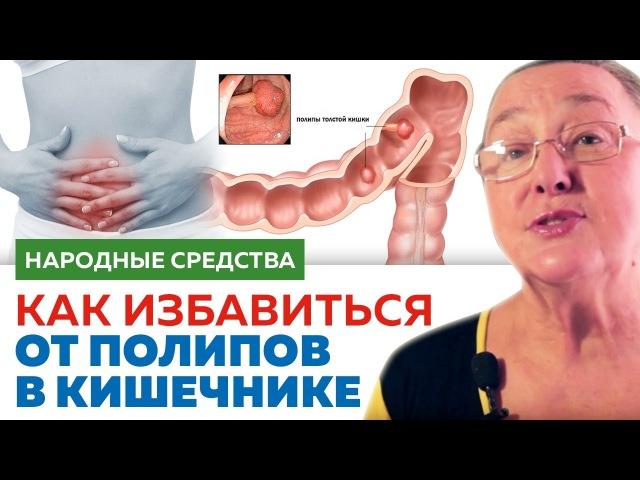 КАК ИЗБАВИТЬСЯ ОТ ПОЛИПОВ в кишечнике || народные средства