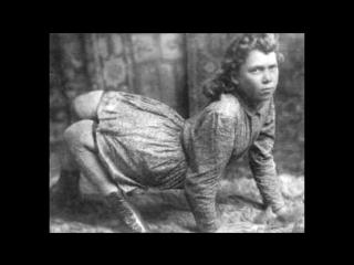 Цирк уродов. Часть 1: истории и трагедии цирковых уродцев, 10 самых страшных историй ужасных заболеваний