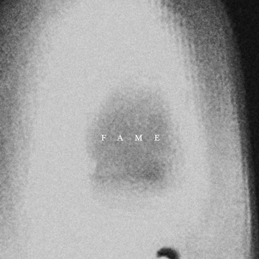 The Acid альбом Fame