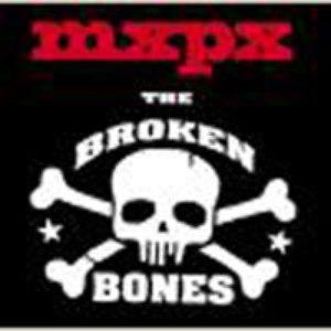 MxPx альбом The Broken Bones