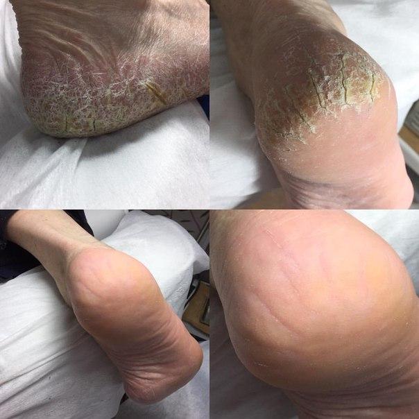 Запах ног избавиться грибок